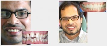 Orthodontics and Veneers