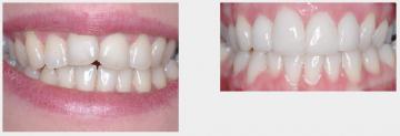 Teeth Whitening and 4 Upper Veneers