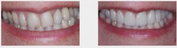 Crooked Broken Teeth - Full Upper Veneers