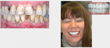 Gum Disease and Bad Teeth - Crowns and Bridges