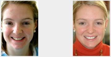 Chipped Front Teeth - Veneers