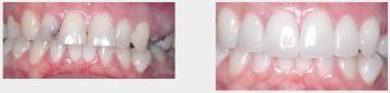 Upper Veneers and Teeth Whitening
