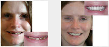 Damaged teeth restored with crowns and bridges