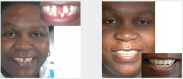 Gum disease gappy teeth treated with Maryland bridges