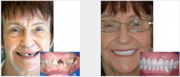 Full mouth crowns and bridges