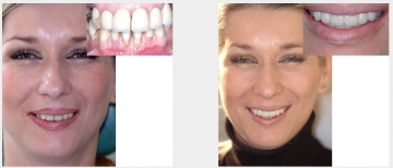 Badly damaged dentition crowns and bridges