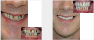 Upper crowns and bridges for grossly damaged teeth