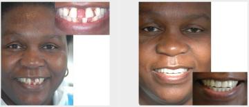 Gum disease gappy teeth treated with Maryland bridges