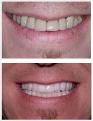 Gum disease - poor crowns dark teeth - crowns and bridges