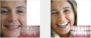 Upper and lower smile enhancement - crowns and bridges