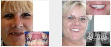 Full upper implants and fixed bridge