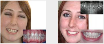 Implant replacing crooked teeth