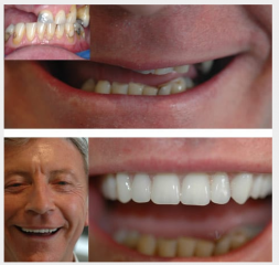 Implant supported overdenture