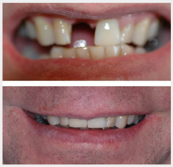 Upper front implant