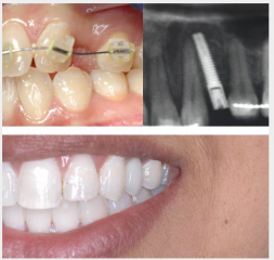Orthodontics to optimise space and implant