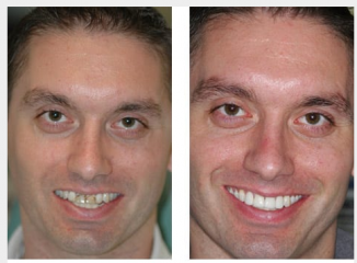 Upper implants