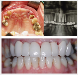 Failed upper bridge multiple upper front implants