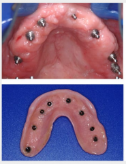 Ball attachments supporting a full denture