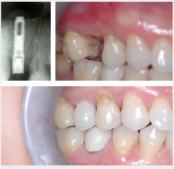 Single implant rep - failed post crown