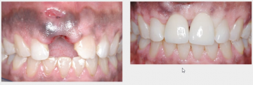 Trauma - Lost Upper Front Tooth