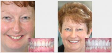 Protruding Teeth Implants and Veneers