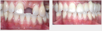 Upper Missing Tooth - Implant
