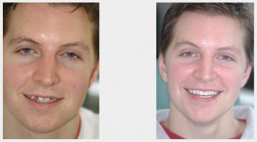 Missing Teeth - Implants