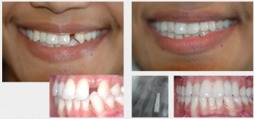Missing Tooth - Implant