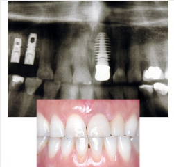 Implant Tooth