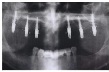 Fin-type Implant Suitable for Thin Ridges