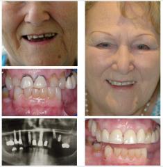 Missing Teeth Multiple Upper Implants
