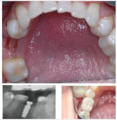 Single Lower Implant