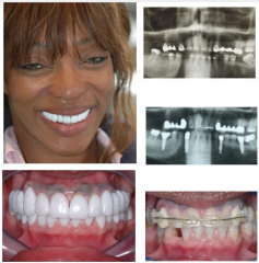 Full Mouth Reconstruction Orthodontics,  Crowns and Bridge Implants