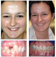 Missing and Out-of-position Teeth Implant and Crown