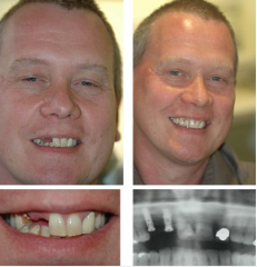 Two Upper Implants and Crowns