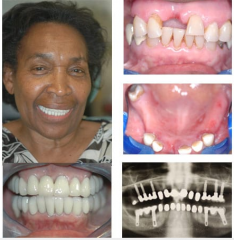 Fractured Post Crowns Replaced by Implant