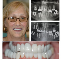 Multiple Implants and Bone Grafts