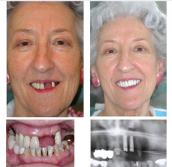 Upper Implants and Crowns