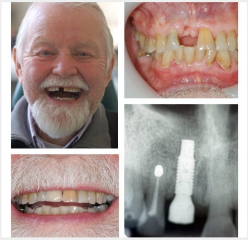 Single Upper Implant