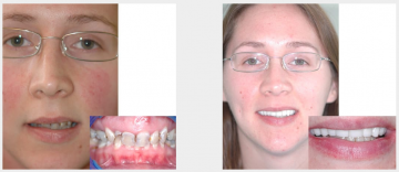 Full upper restoration - implants and crowns