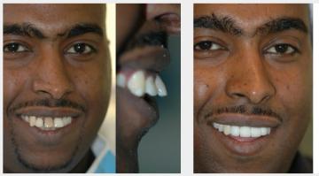 Dark crooked teeth - implants and bridge