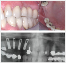 Multiple upper implants with sinus graft