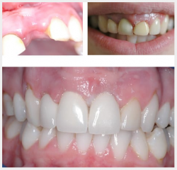 Upper crowns and implants