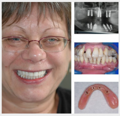 Overdentures supported on ball attachment implants