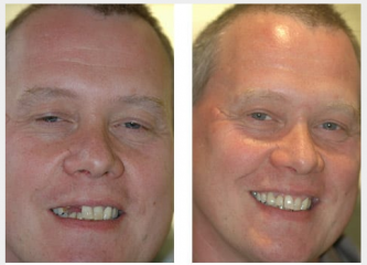 2 upper implants and crowns