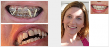 Upper front cosmetic crowns orthodontics & Teeth Whitening