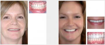 8 upper veneers - orthodontics and teeth whitening