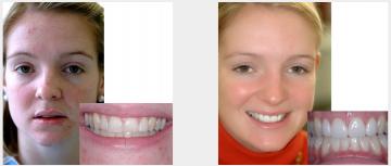 Cosmetic veneers plus teeth whitening