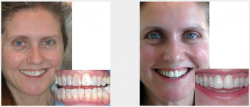 Stained malaligned teeth 2 veneers and Teeth Whitening
