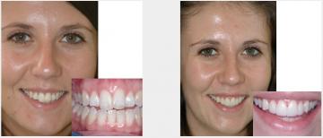 Crooked teeth - veneers